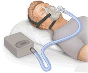 CPAP (1)